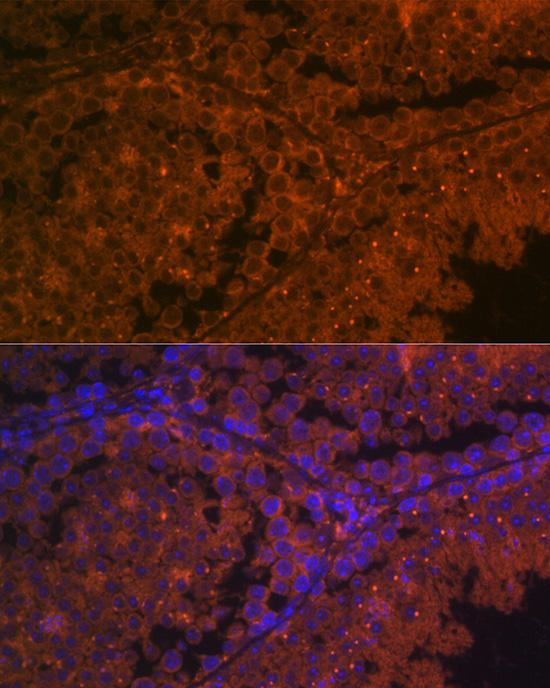 ABclonal:Immunofluorescence - ACE2 Rabbit pAb (A12737)
