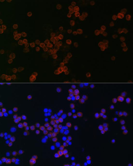 ABclonal:Immunofluorescence - CD68 Rabbit pAb (A13286) }