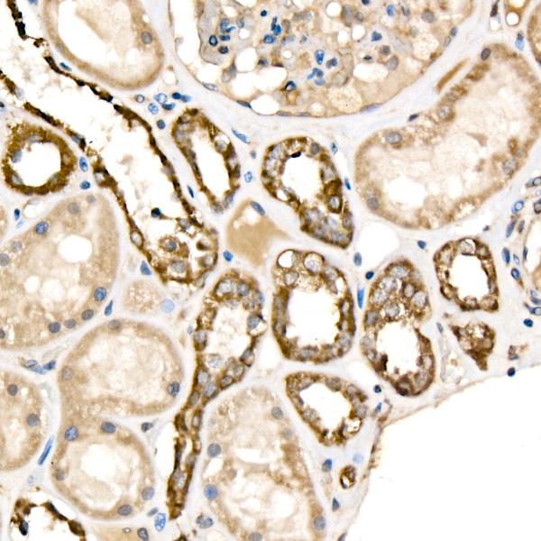 ABclonal:Western blot - [KO Validated] Cytochrome c Rabbit pAb (A13430) }