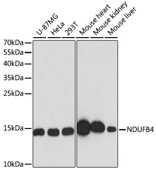 ABclonal:Western blot - [KO Validated] NDUFB4 Rabbit pAb (A13820)