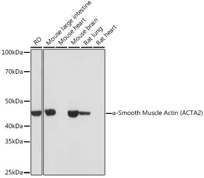 ABclonal:Western blot - alpha smooth muscle Actin Rabbit mAb (A17910) }