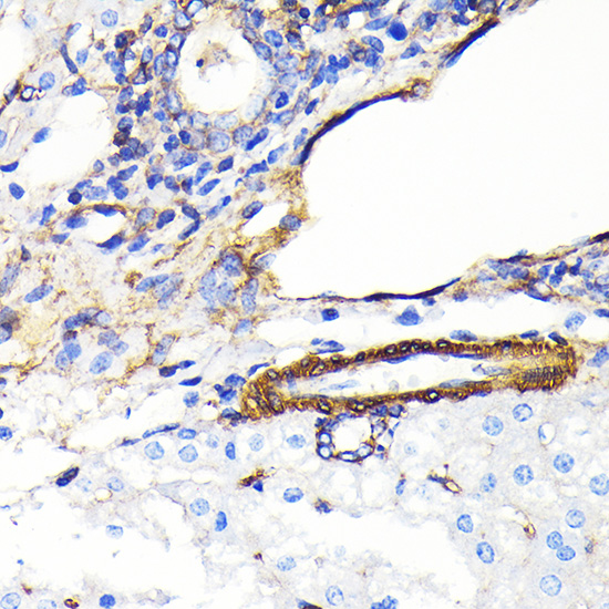 ABclonal:Immunohistochemistry - alpha smooth muscle Actin Rabbit mAb (A17910) }