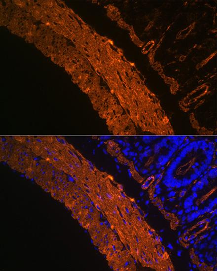 ABclonal:Immunofluorescence - alpha smooth muscle Actin Rabbit mAb (A17910) }