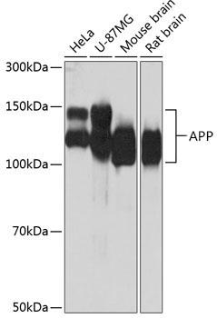 ABclonal:Western blot - [KO Validated] APP Rabbit mAb (A17911) }