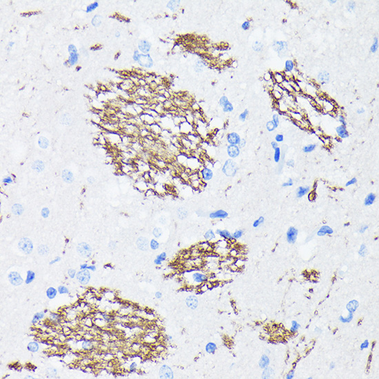 ABclonal:Immunohistochemistry - [KO Validated] APP Rabbit mAb (A17911) }