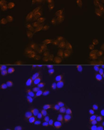 ABclonal:Immunofluorescence - [KO Validated] APP Rabbit mAb (A17911) }