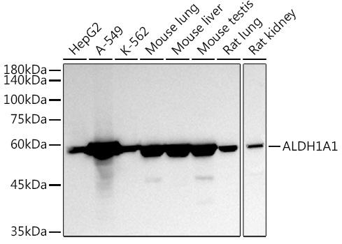 ABclonal:Western blot - ALDH1A1 Polyclonal Antibody (A1802) }