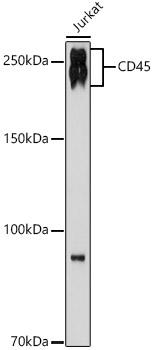 ABclonal:Western blot - CD45 Rabbit mAb (A19021) }