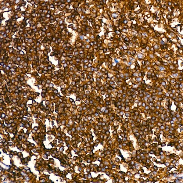 ABclonal:Immunohistochemistry - CD45 Rabbit mAb (A19021) }