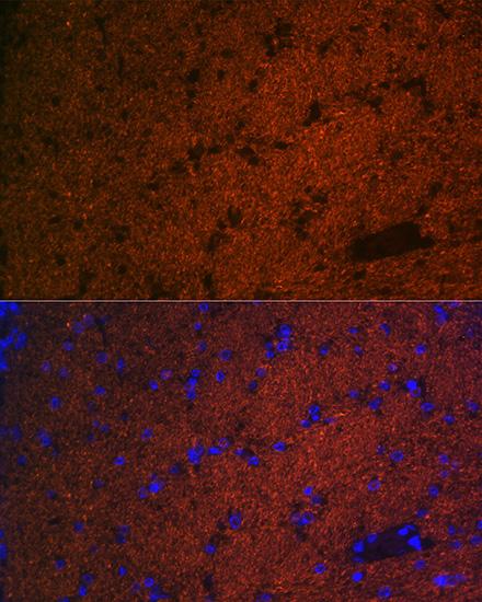 ABclonal:Immunofluorescence - CNPase Rabbit mAb (A19033) }