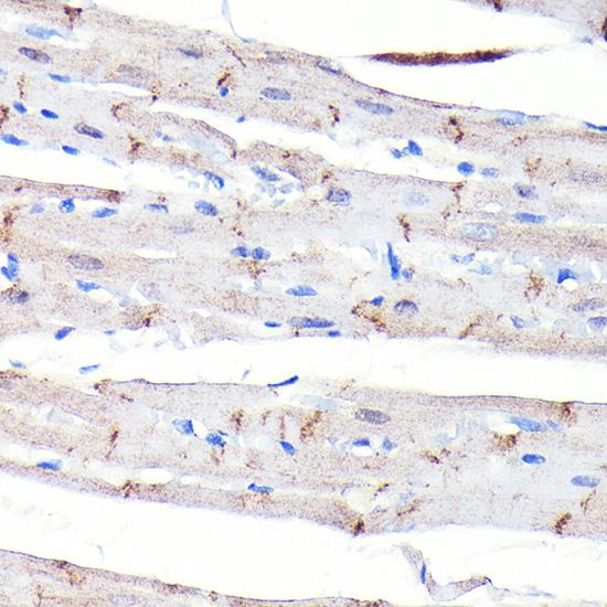 ABclonal:Immunohistochemistry - [KO Validated] N-Cadherin Rabbit mAb (A19083) }