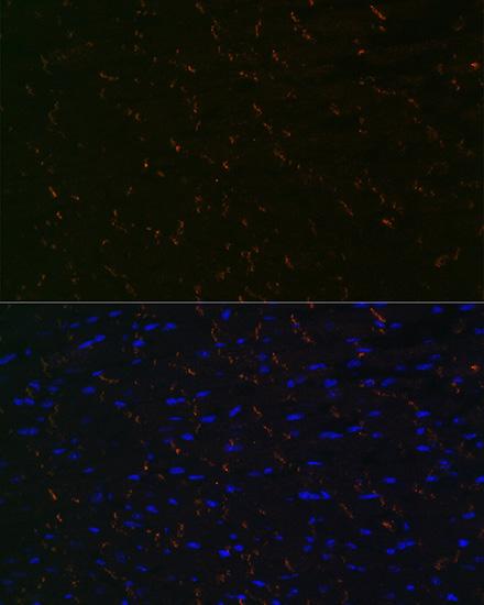 ABclonal:Immunofluorescence - [KO Validated] N-Cadherin Rabbit mAb (A19083) }