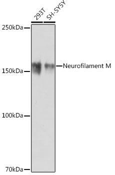 ABclonal:Western blot - NEFM Rabbit mAb (A19085) }