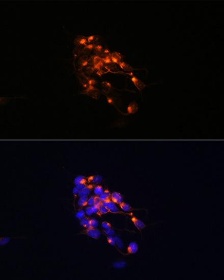 ABclonal:Immunofluorescence - NEFM Rabbit mAb (A19085) }