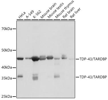 ABclonal:Western blot - TDP43 Rabbit mAb (A19123) }