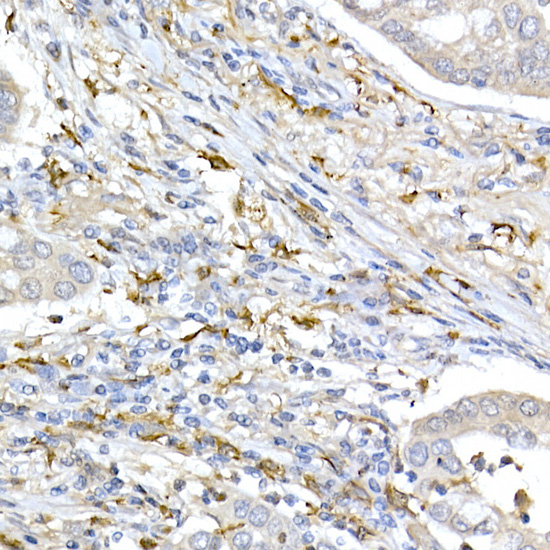 TOM20 Rabbit mAb