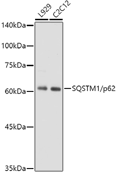 [KO Validated] SQSTM1/p62 Rabbit mAb