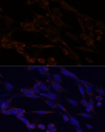IKK alpha Polyclonal Antibody