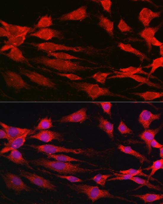 p70 S6 kinase Rabbit pAb