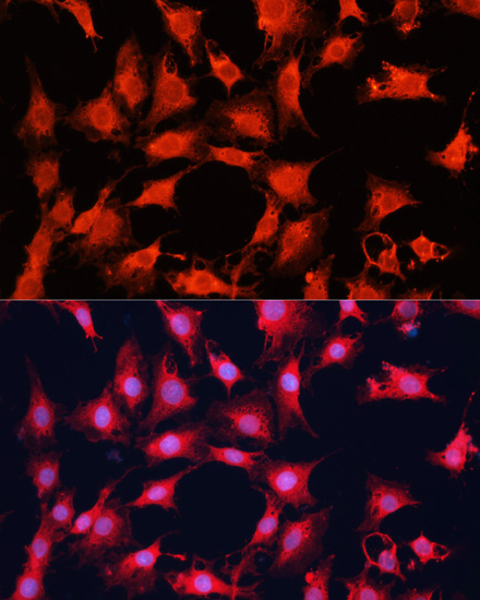 mTOR Polyclonal Antibody