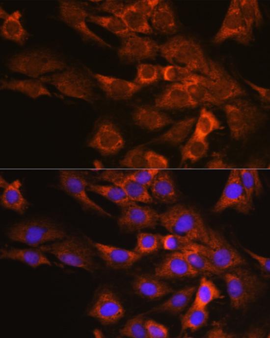 EIF4G2 Polyclonal Antibody