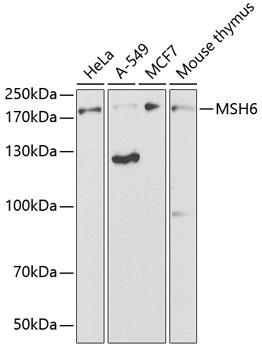 MSH6 Rabbit pAb