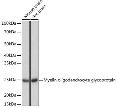 ABclonal:Western blot - Myelin oligodendrocyte glycoprotein Rabbit mAb (A3992) }