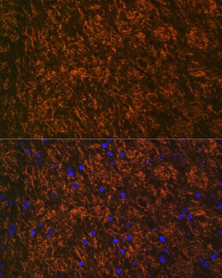 ABclonal:Immunofluorescence - Myelin oligodendrocyte glycoprotein Rabbit mAb (A3992) }