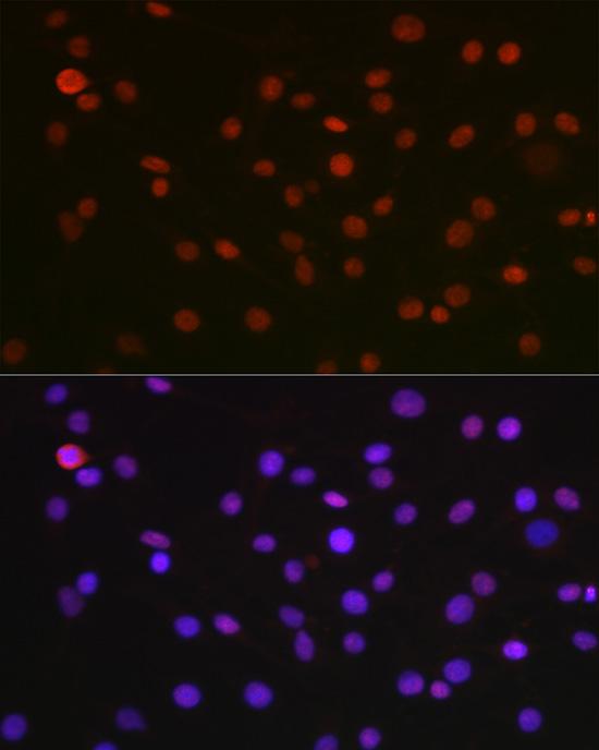 NONO Polyclonal Antibody