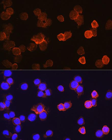 ABclonal:Immunofluorescence - CD14 Polyclonal Antibody (A5737)