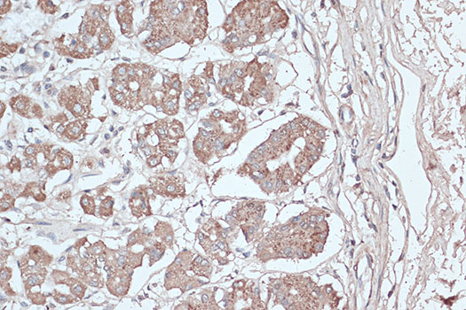 [KO Validated] LC3B Polyclonal Antibody