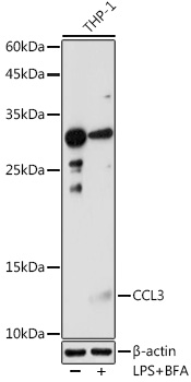 ABclonal:Immunohistochemistry - CCL3 Polyclonal Antibody (A7568)