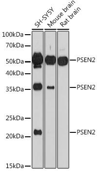 PSEN2 Polyclonal Antibody