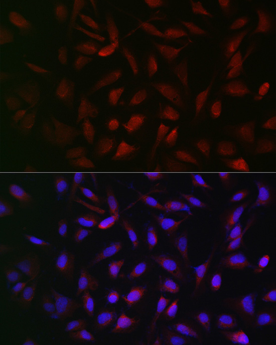 ABclonal:Immunofluorescence - [KO Validated] PFKP Rabbit pAb (A7916)