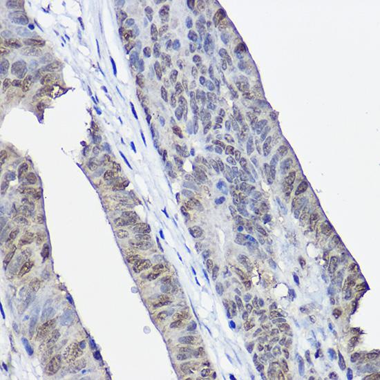 XPC Polyclonal Antibody