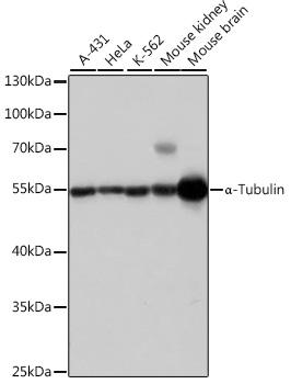 Western blot - TUBA4A Polyclonal Antibody (CABC007)