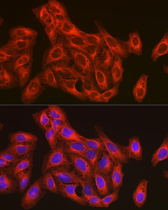 ABclonal:Immunofluorescence - β-Tubulin Rabbit pAb (AC008) }