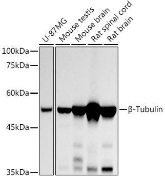 Western blot - Beta-Tubulin Monoclonal Antibody (CABC010)