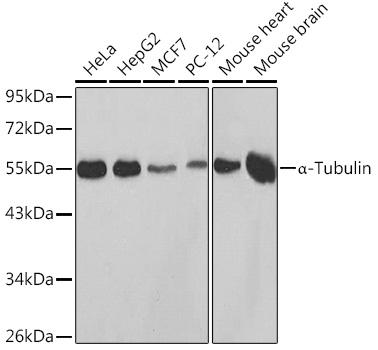 Immunohistochemistry - TUBA4A Polyclonal Antibody (CABC014)