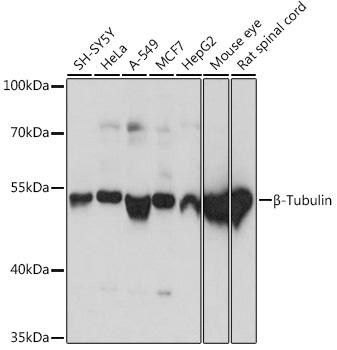 Western blot - Beta-tubulin Polyclonal Antibody (CABC015)