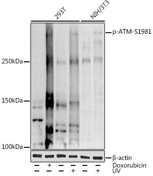 Phospho-ATM-S1981 Rabbit pAb