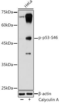 Phospho-p53-S46 Rabbit pAb