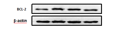ABclonal: review for Bcl-2 Rabbit pAb(A2212)