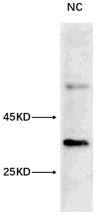 ABclonal: review for [KO Validated] LC3B Rabbit pAb(A7198)