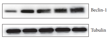 ABclonal: review for [KO Validated] Beclin 1 Rabbit pAb(A7353)