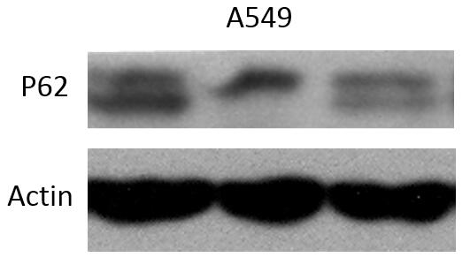 ABclonal: review for SQSTM1 / p62 Rabbit pAb(A7758)