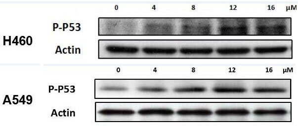 ABclonal: review for Phospho-p53-S15 Rabbit pAb(AP0083)