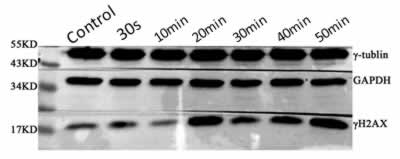 ABclonal: review for Phospho-Histone H2AX-S139 Rabbit pAb(AP0099)