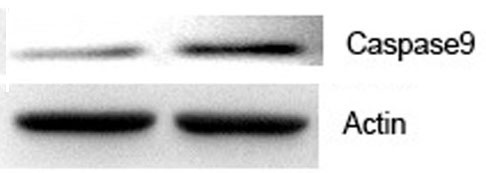 ABclonal: review for Caspase 9 Polyclonal Antibody(A2636)