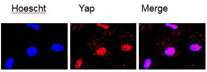 ABclonal: review for [KO Validated] YAP1 Polyclonal Antibody(A1002)